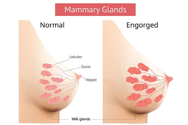 Breast Engorgement - Causes & Simple Tips for Relief 1